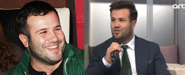 Saç əkdirən azərbaycanlı məşhurların SİYAHISI - FOTO