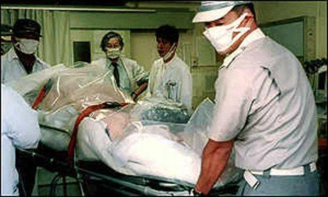 Ən ağrılı şəkildə ölümü yaşamış adam(+18 FOTO)