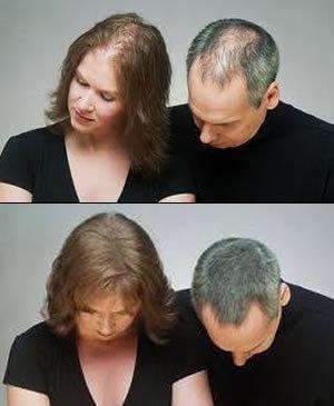 Saçlarınızın seyrəkliyini bərpa edib , istənilən görünüşə sahib olun !