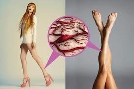 Ayaqlarınızdakı ulduz damarcıqlarından qurtulacaqsınız..