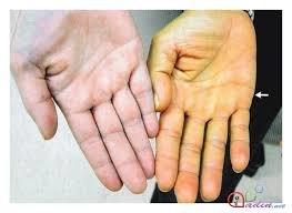 Qaraciyer piylənməsi,hepatit problemi olanlara təbii yolla müalicəsi