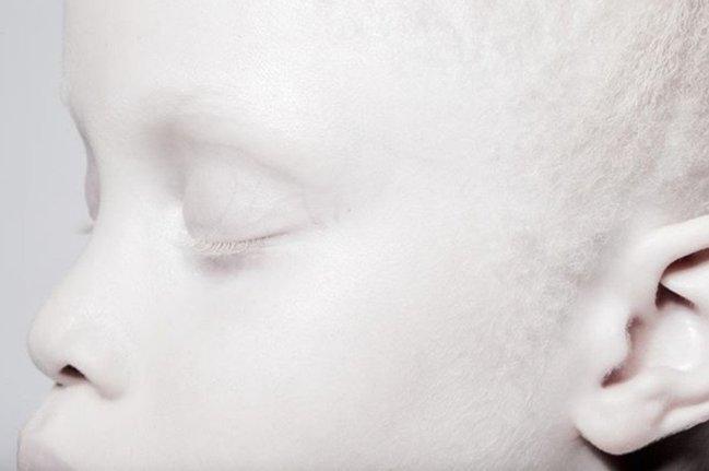 Albinizm xəstəsi olan bacılar internetde ulduza çevrildi - FOTOLAR