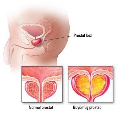 Prostat vəzi xərçənginin qarşısını alan təbii vasitə...